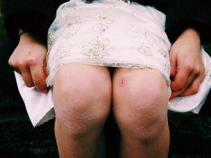 Scarred Knees